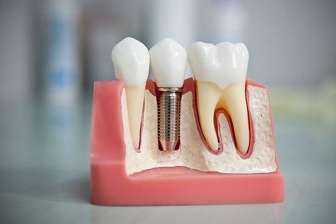 имплантация зубов. импланты в стоматологии в твери