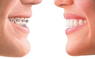 исправление прикуса в стоматологии в твери. брекеты, элайнеры и пластинки