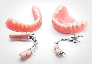 протезирование зубов в стоматологии в твери, съемные протезы, полный съемный протез, бюгельный протез, зубы вставные, зубы