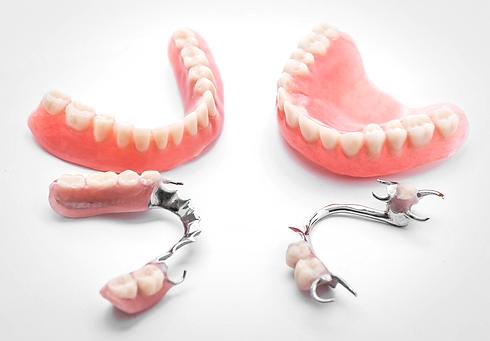 протезирование зубов в стоматологии в твери