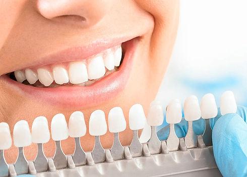 отбеливание зубов в стоматологии в твери