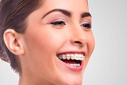 исправление прикуса в стоматологии в твери, элайнеры и брекеты и пластинки