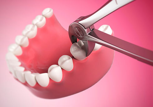 удаление зубов без боли в стоматологии в твери