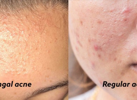 Acne Sucks - Fungal Acne Can Be Even Worse