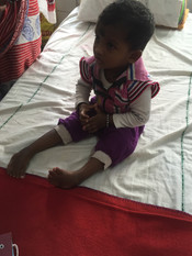 Neglected clubfoot will be history