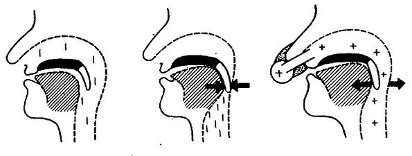 Механизм СИПАП-терапии