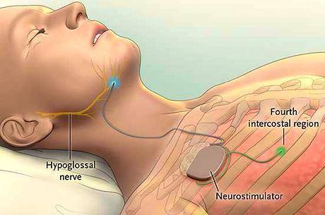 Нейростимулятор подязычного нерва