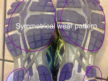 Use the sole of your running shoe to figure out your running injury