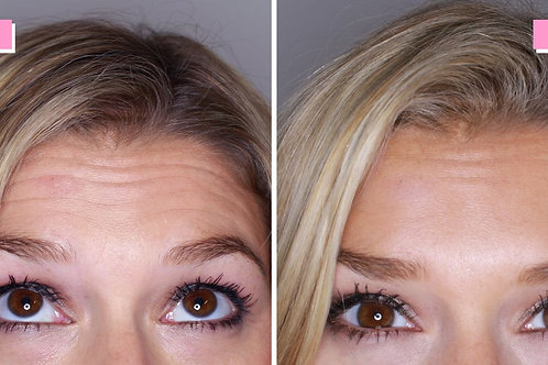 Wrinkle relaxers £170