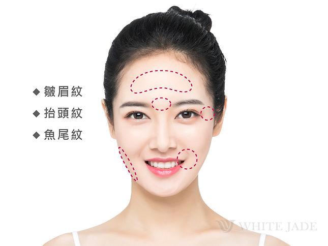 適應症-臉部圖-01.jpg