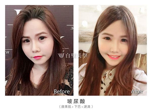 2019.01 官網before&after-02.jpg