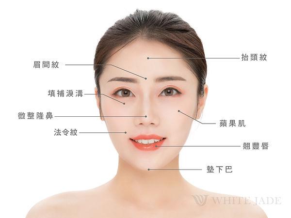 玻尿酸適應症-臉部圖-01.jpg