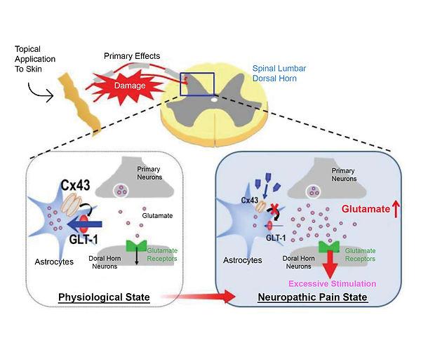 Neuropathic Pain.jpg