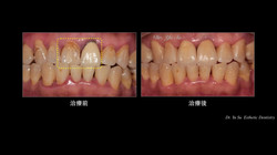 上顎正中門齒蛀牙與舊假牙色澤不佳並邊緣露出
