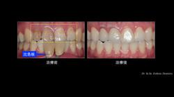 上顎門齒蛀牙與色澤不佳