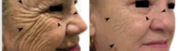 botox-before n after