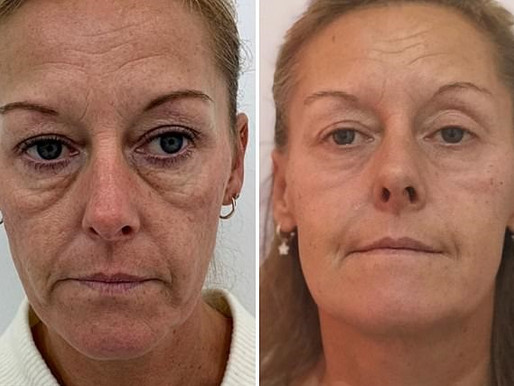 Perfect And Plump Fine Lines And Wrinkles Instantly With Innovative New Treatment