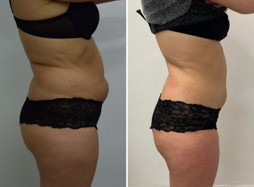Lose Inches At Lunchtime With Revolutionary New Fat Loss Treatment