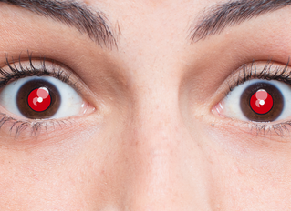 WHY EYES LOOK RED IN PHOTOS