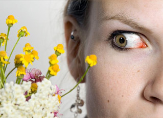 ALLERGIES AND YOUR EYES