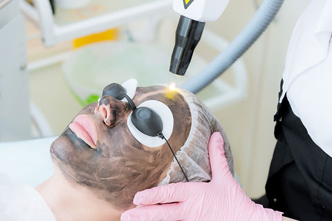 Close-up carbon face peeling procedure.