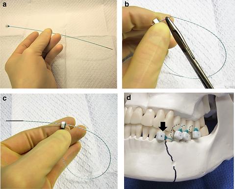 Laryngoscope Investigative Otolaryngology: Dental occlusion ties: A rapid, safe, and non-invasive maxillo-mandibular fixation technology