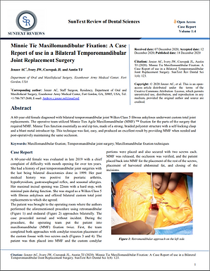 Case Report: Minne Ties for MMF in Bilateral TMJ Replacement Surgery