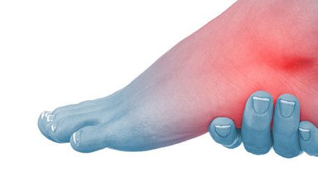 Sprained or Injured Ankles