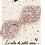 Thumbnail: Barrette noeud lapin