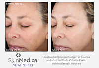 vitalize-peel-before-after - SkinMedica