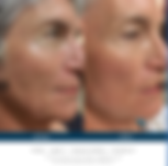 skinpen before and after - Microneedling