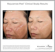 Rejuvenize Peel Before and After - SkinMedica