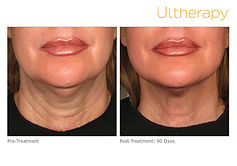 ultherapy-000p-044y_before-90daysafter_l