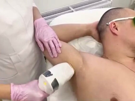 Мужская лазерная эпиляция в клинике NAUKA!