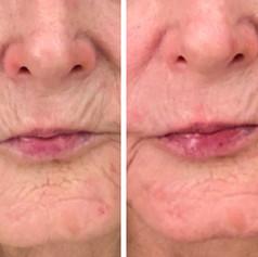 Plasma Pen Results Face
