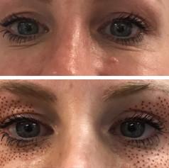 Plasma Pen Results Eye