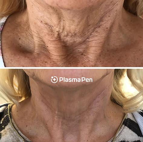 Plasma Pen Results Neck