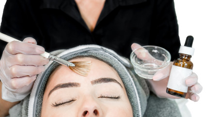 Chemical Peels- What is the Hype?