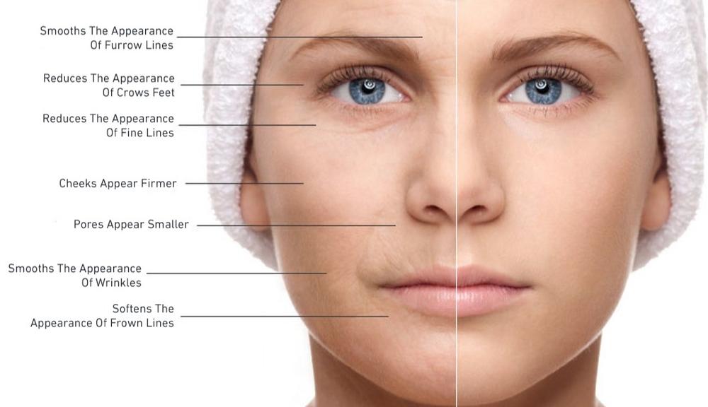 Fibroblast Plasma Skin Therapy Noninvasive Skin Tightening