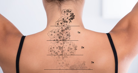Laser Tattoo Removal- Miracle or myth?