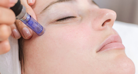 Microneedling- Why Invest In It?