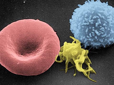 Как не заболеть раком, забыть о простудах, аллергиях, хронических болезнях, воспалениях любого рода