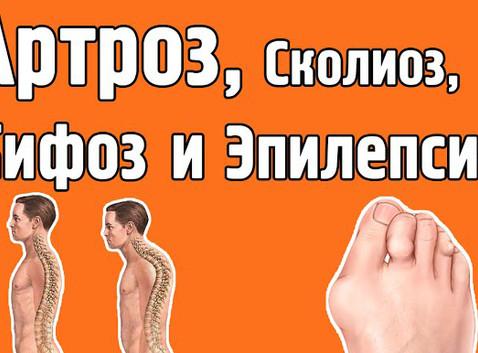 Деформирующий артроз, сколиоз, кифоз и эпилепсия. Светлана Солонченко. Александр Малко.