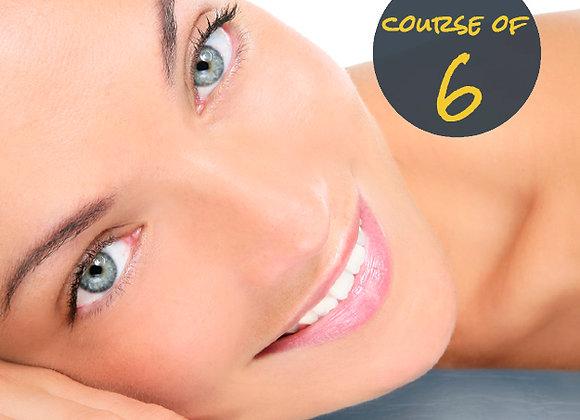 Upper lip 6 sessions