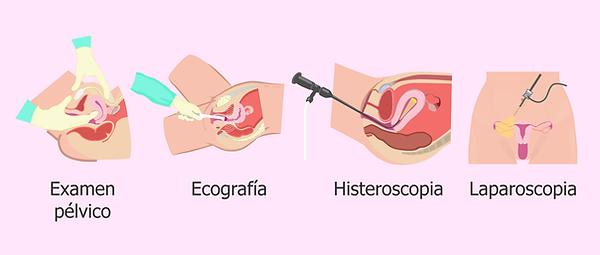 tecnicas-para-diagnosticar-miomas.png