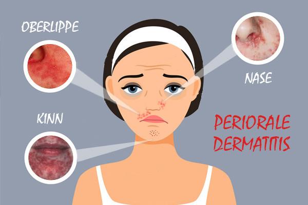 Periorale dermatitis kinn nase mund.jpg