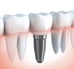 Dental Implants: Five frequently asked questions answered by a dentist.