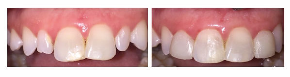 Composite Veneer Before and After 1
