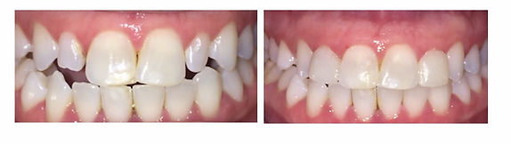 Composite Veneer Before and After 2