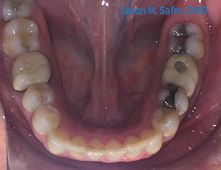 taunton invisalign after